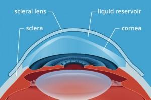 Scleral Lenses